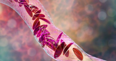 Sickle Cell Anemia Diagnosed In Record Time Thanks To New Technology